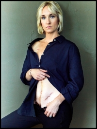 "Photo taken five months after my ostomy ""take down"" for Charlie Mag's 50 Most Progressive."