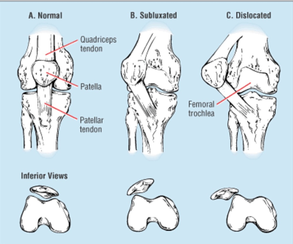 Notice what happens when the knee subluxes. The knee cap, or patellar, shifts laterally to the outer aspect of the joint, putting an immense amount of pressure on the ligaments that hold it in place.