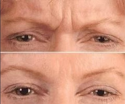 Two weeks after treatment with Botox
