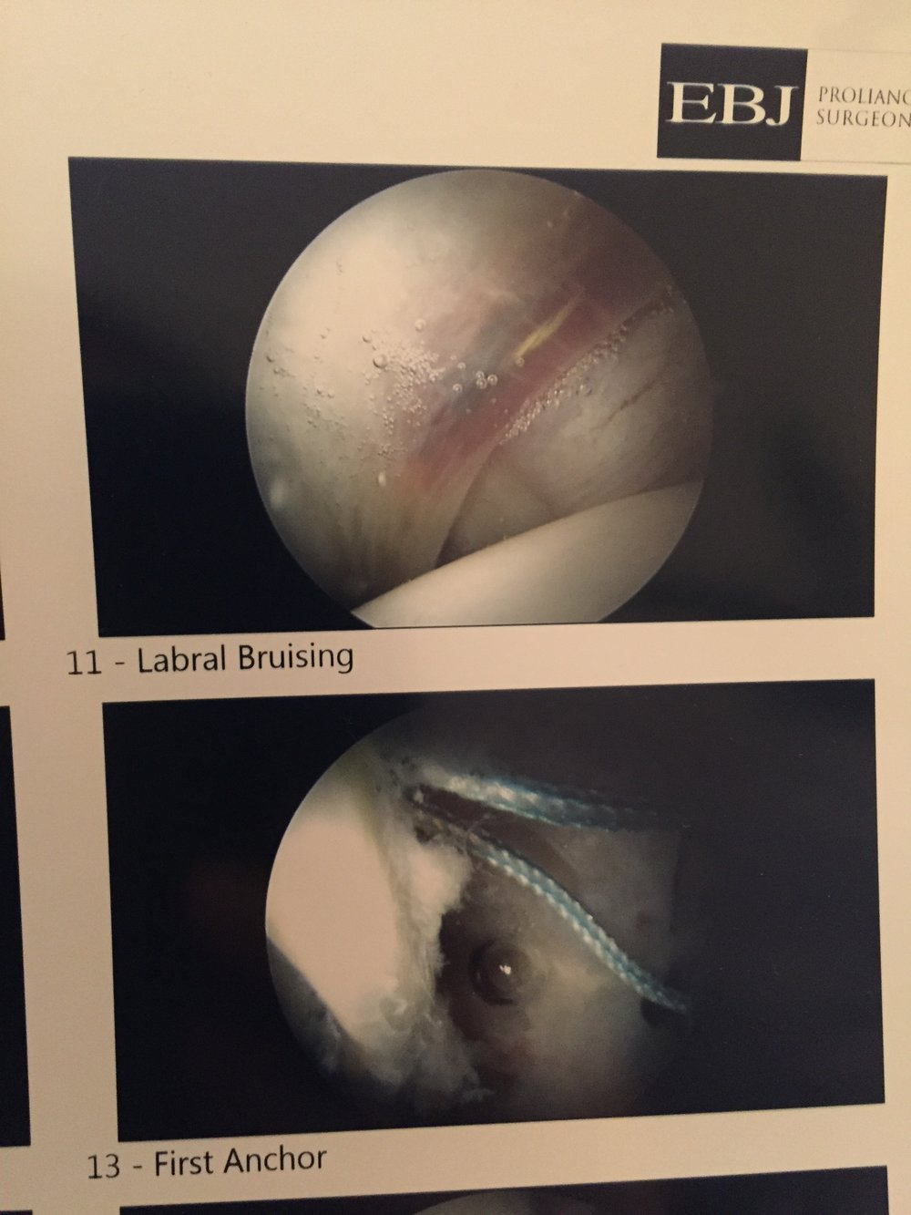 Apparently my labrum was bruised, no wonder it was uncomfortable all the time!  Plus, the first of 2 anchors being put in.