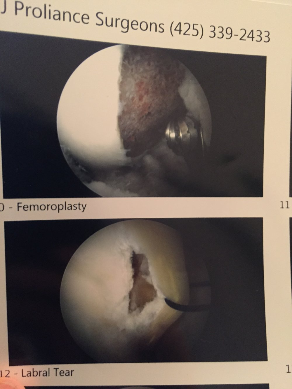 Top picture is the shaving of my femur - bottom is what it says, my tear!  Pretty good, huh?