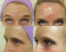 Before and After Botox in the forehead and crows feet