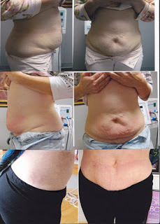 The top picture is before Lipo-Ex. The middle picture is after 1 treatment. The third picture is 2 months after 8 treatments were completed.