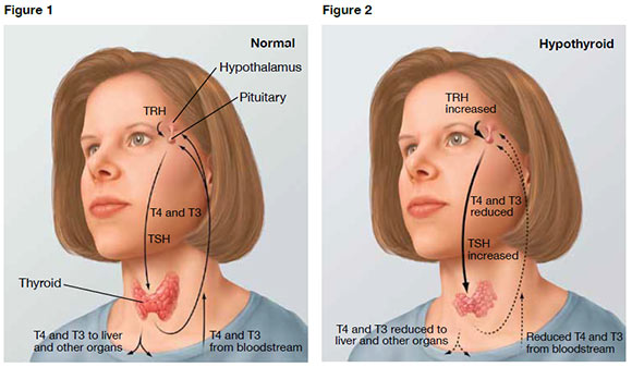 Why doesn't anyone believe I have a thyroid problem ...