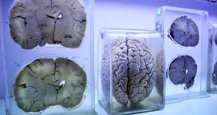 brain bank (1).jpg