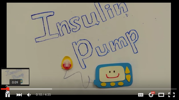 Insulin Pump Video for Mott Pediatric Diabetes