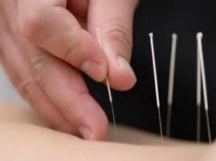 Columbia Acupuncturist