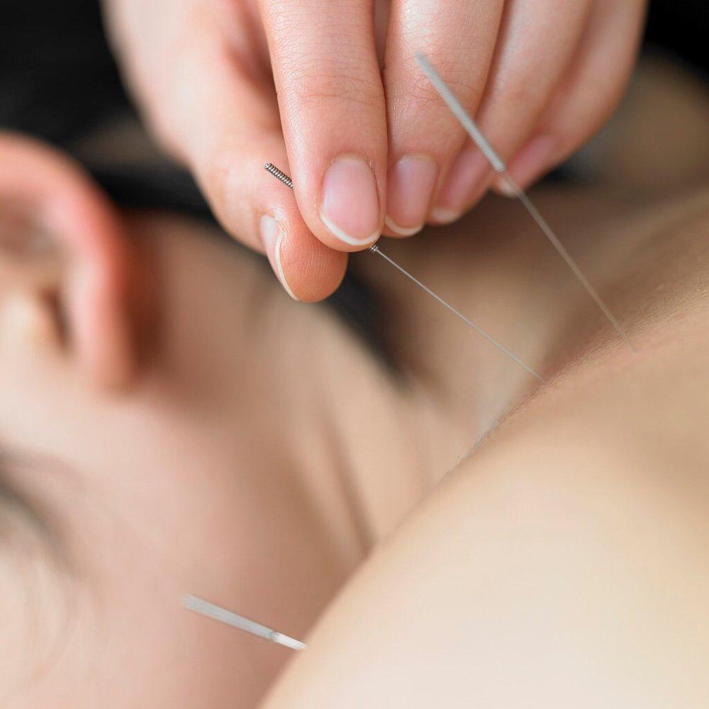 columbia ellicott city elkridge best acupuncturist
