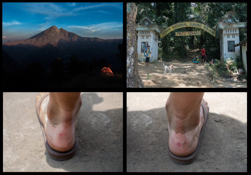 The End- some souvenirs from the trip (nasty blisters!)