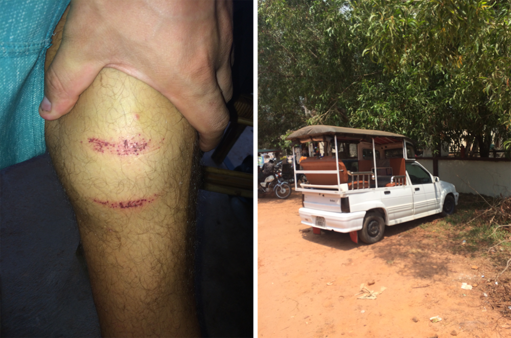 Left: Mikey's scratch from getting kicked by the cow. Right: One of the best tuk tuk ideas of the whole trip in Otres Beach!
