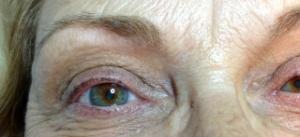 Before Upper and 1/2 lower Eyeliner