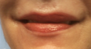 Immediately after Full Lips