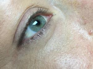 Before Upper and Lower Eyeliner