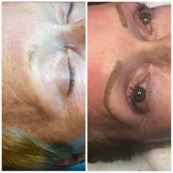 Before and After Microblading. Immediately after procedure.