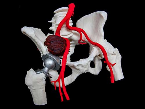 "Above the metal hip joint nestled in this 3D-printed pelvis is a ""pseudotumour"" – a benign growth that can be painful and sometimes requires surgery. This model shows clearly how the tumour can create pressure on major blood vessels. (Image: Cavendish Imaging)"