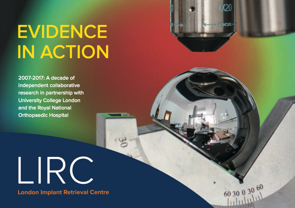 Read the story of the London Implant Retrieval Centre - PDF DOWNLOAD