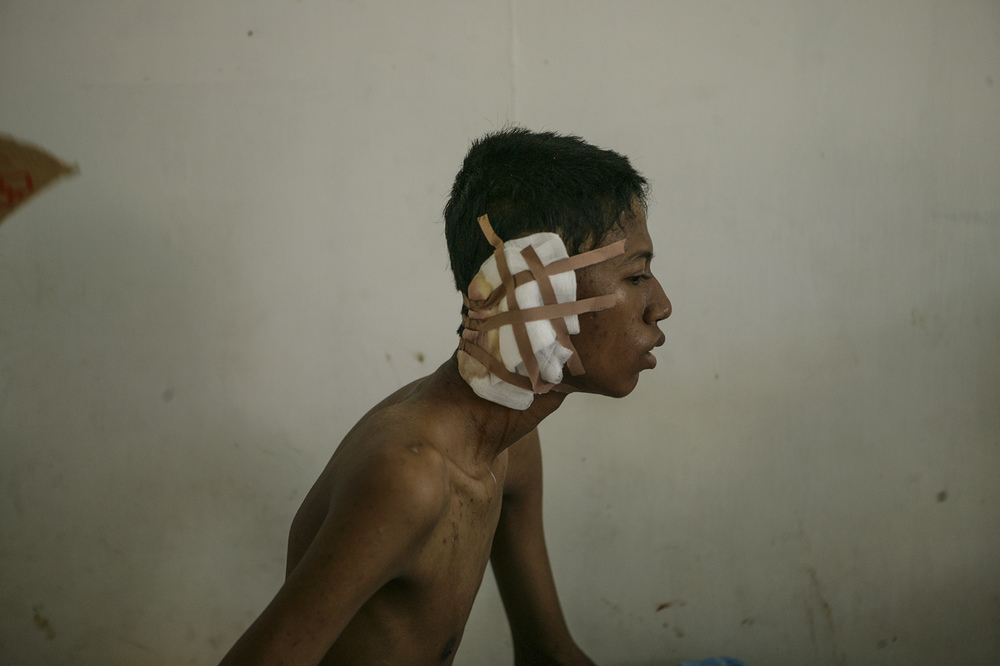 Hospitals were filled with wounded locals who fled to the hills during the tsunami and returned with severe infections. This young man lost an ear due to injuries he suffered during the tsunami.