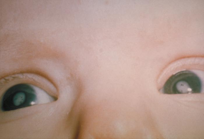 A baby with rubella caused cataracts. Courtesy Center for Disease control.