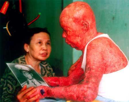 victim of agent orange Vietnam