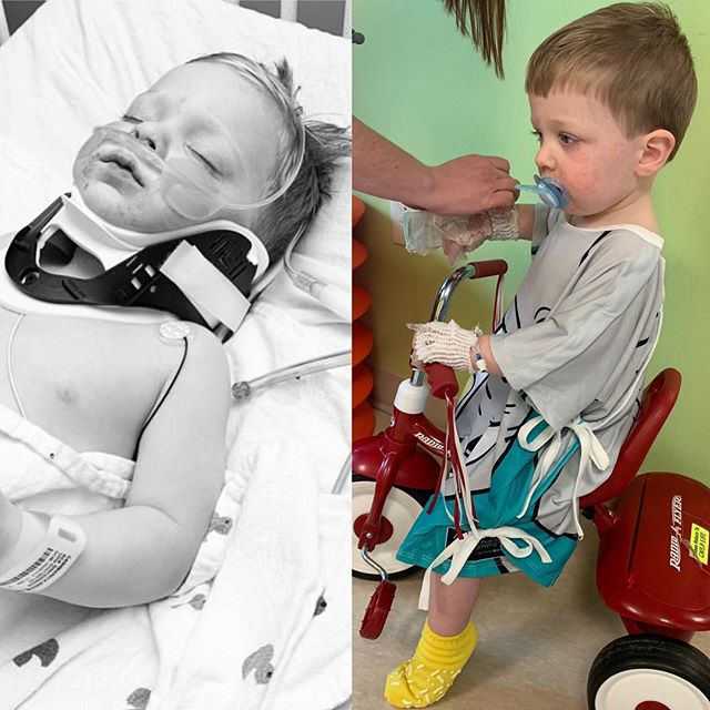 It's overwhelming to see these 2 pics side by side! Indy's progress in 24 hours has been a total miracle. We have good CT scans, good EEG results and good blood work; we have a small case of aspirated pneumonia that should already be mostly gone Bc of antibiotics and we have a boy with only 1 cord hanging off of him as opposed to the 7 he did have - all amazing reports. We have one last big prayer request! This morning they fully sedate Indy to do a full body MRI; they are specifically looking for brain injury that would be a result of a lack of oxygen - will you pray with us that these results are also clear and good???? We all appreciate all the support! There aren't enough good enough words, but thank you! Please keep the prayers coming!!!