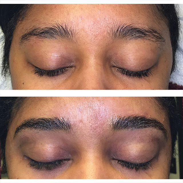 Hairstroke brows before and after. These were done with a machine. Not microblading. I love how these healed up. 🌸