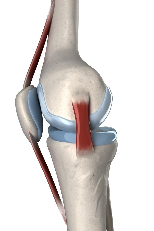 `Anatomie van de knie met patellapees, knieschijf, meniscus en binnenband