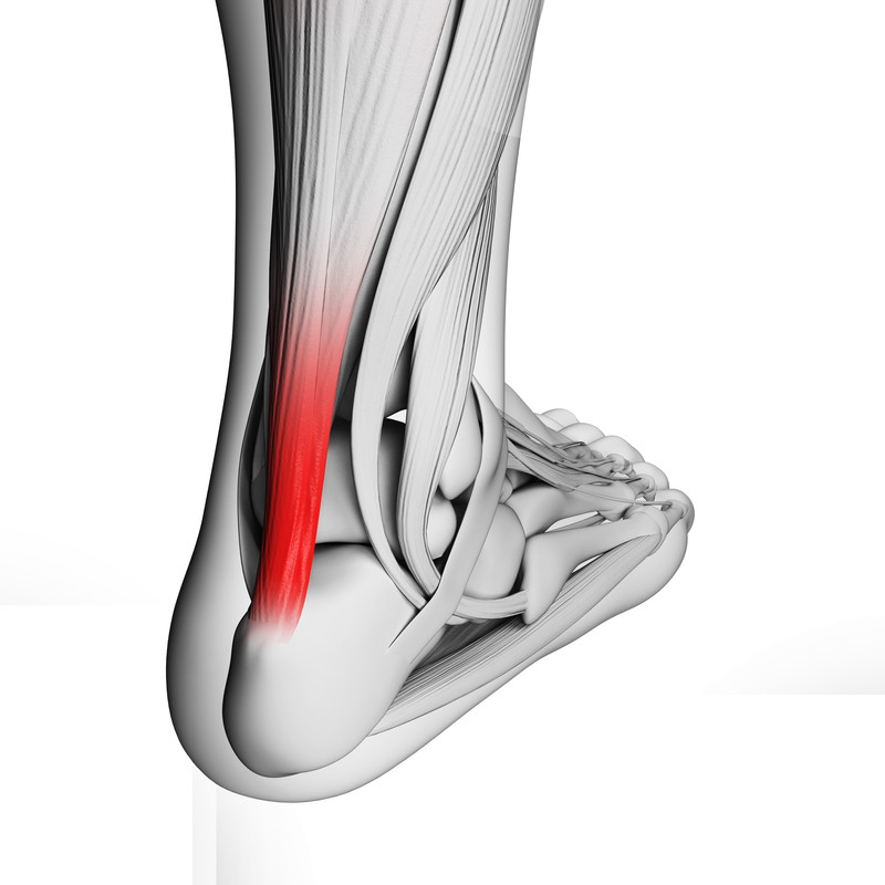 Ontsteking/ irritatie van de Achillespees