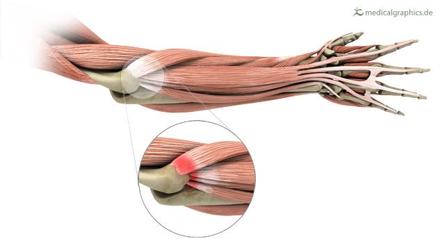 De tenniselleboog, ontsteking van de peesaanhechting van de onderarmspieren.