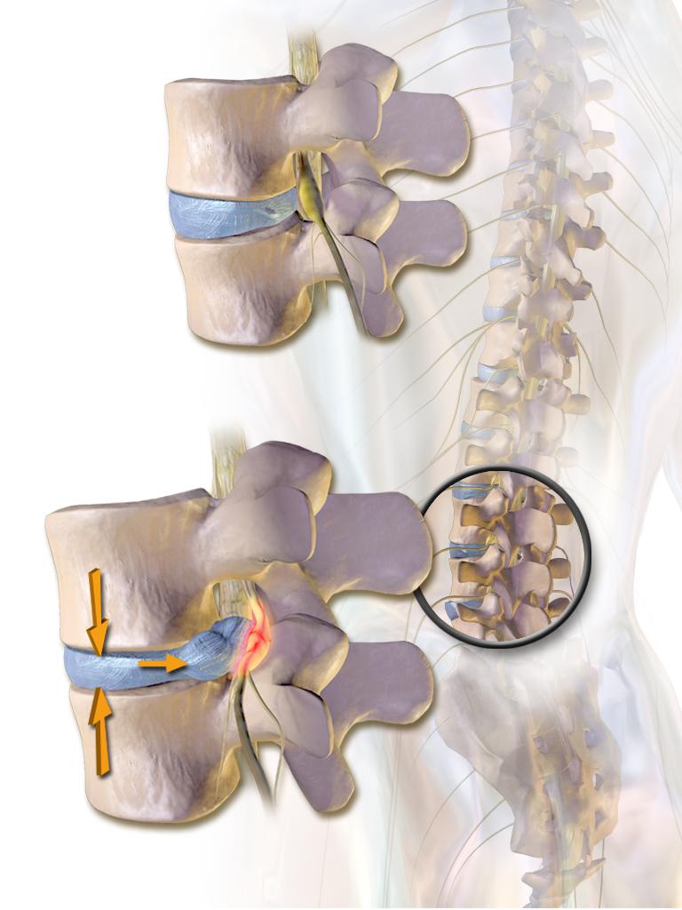 De onderste afbeelding toot een hernia van de onderrug waarbij de tussenwervelschijf afknelling van de zenuwen veroorzaakt.
