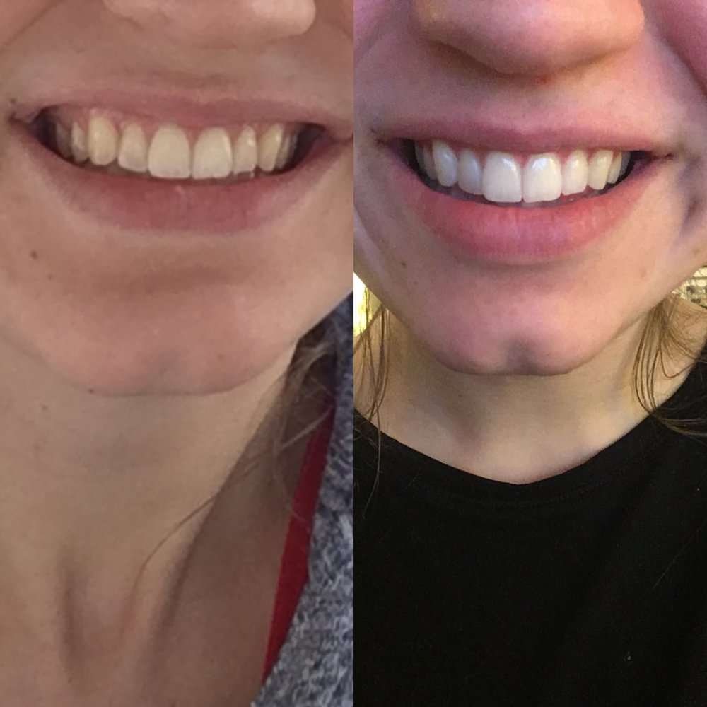 Although these are IPhone pictures- I noticed a BIG difference. I send selfies to my husband pretty frequently, and I felt like these best represented my before & after changes! I am so happy with the results.
