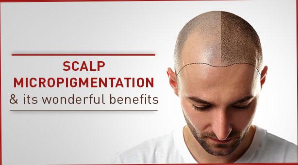 Scalp-micropigmentation-and-its-wonderful-benefits-1.jpg