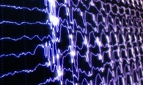 Brain waves recorded with electroencephalography (EEG). Photograph: Deco/Alamy