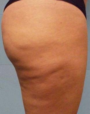 Cellulite type 2 -