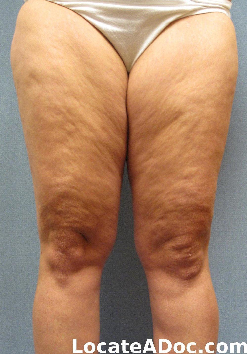 Cellulite type 3 -