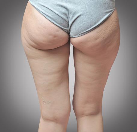 Cellulite type 4 -