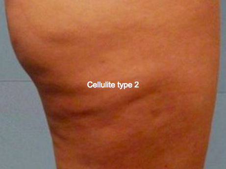 cellulite type 2 gua sha massage tool redskab kursus