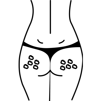 """Cellulite type 1 - """"Hytteost"""""""