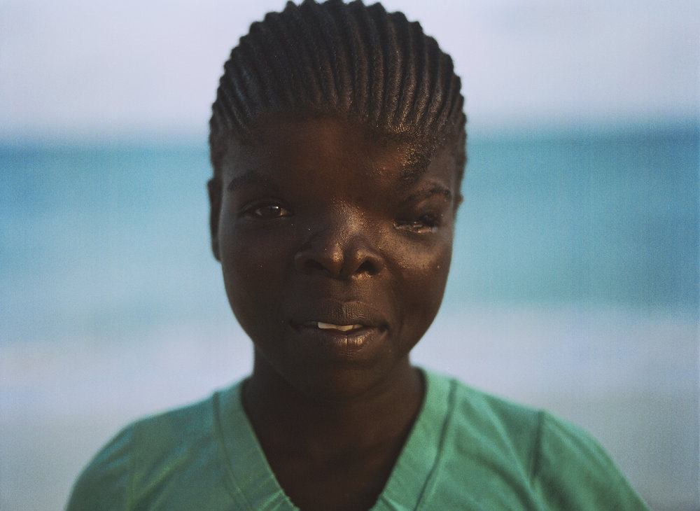 Heidi lost her eye as a child. Malindi, Kenya
