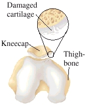 Cartilage Damage  Sometimes the cartilage on the back of the kneecap or in the groove of the thighbone is damaged. Damaged cartilage can't spread pressure evenly. Uneven pressure wears down the cartilage even further.