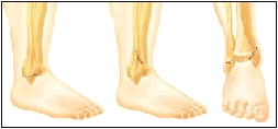 Sites of common ankle fractures