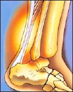 A strain injures muscles or tendons (tissue that connects muscles to bones).