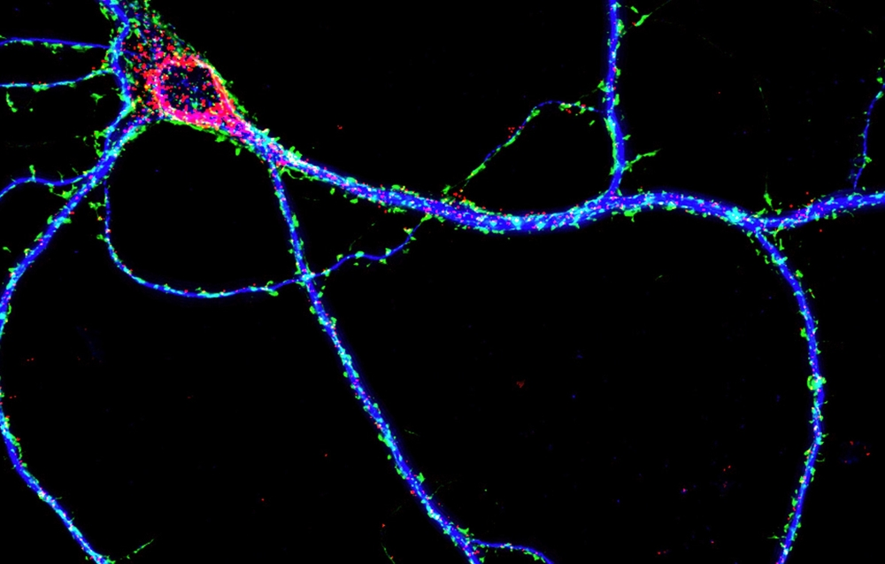 Cortical neurons cultured  in vitro  for 16 days and stained for MAP2 (blue), actin (green) and RNA granule complexes (red). Copyright Jason Dictenberg, PhD.