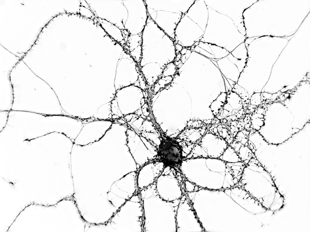 Mouse hippocampal neuron grown 21 days in vitro, stained for synapses with the actin-binding drug phalloidin, and imaged using 3D wide-field digital microscopy. The image was resolved in using super-resolution deconvolution algorithms to view fine details such as the synaptic cytoskeleton, and rendered in 3D. Copyright Jason Dictenberg, PhD.
