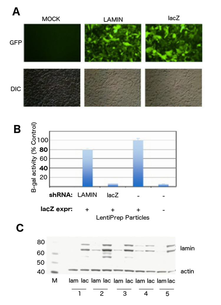 (A) HEK293 cells (DIC) were transduced with LentiPrep particles expressing lacZ gene, and co-transduced with either LentiPrep particles containing shRNA to lacZ (lacZ), negative control lamin (lamin) gene, or mock transduced (Mock), with all vectors containing a co-expressed GFP marker (GFP) on the plasmid for transduction confirmation. (B) B-galactosidase activity assay to determine extent of shRNA knockdown of lacZ expression in cells from panel (A). B-galactosidase activity was normalized to control cells containing lacZ transduction alone, while shRNA co-transduced cells showed decreased lacZ expression depending on the gene targeted. This is in contrast to control cells with no lacZ expression which show no significant level of activity (n=3-5 experiments per treatment). (C) Western blot for lamin (shRNA knockdown) or actin (control, empty shRNA vector) proteins after stable transduction and expression of shRNA LentiPrep contructs. Each cell population (#1-5, bottom) were tested for lamin (lam) and lacZ (lac) expression, and all showed significant knockdown of lamin proteins (antibody recognizes lamins A/C as two separate sized bands at 68-78kD). Marker (M) shown on left side with sized bands.