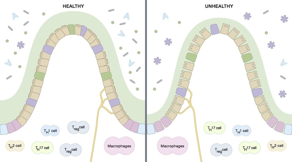 On the unhealthy side you can see the gaps that occur between cells (leaky gut) and altered organisms (dysbiosis), Other possible changes include loss of the mucosal barrier (green layer), and changes in the immune cells (T cells).