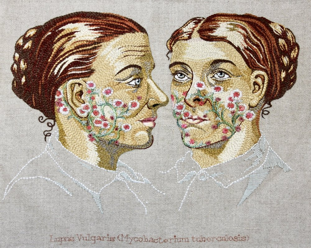 Lupus Vulgaris (Mycobacterium tuberculosis)