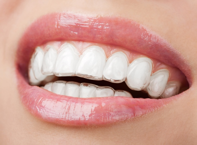 Invisalign: The Benefits of Invisible Braces