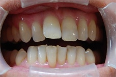Before Smilelign treatment