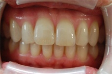 After Smilelign treatment