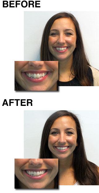Janine-jones-hallam-fm-smilelign-clear-braces